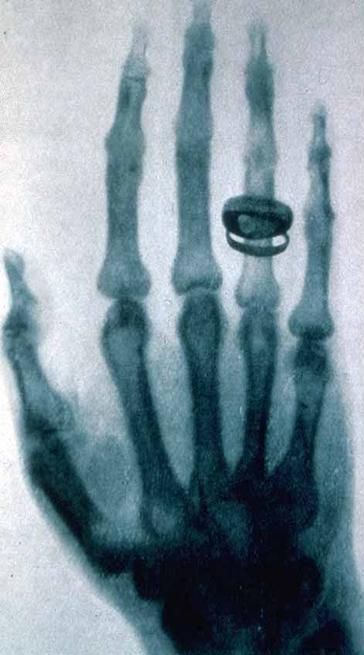 Roentgen-x-ray-von-kollikers-hand