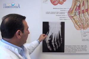 Διαδερμική Χειρουργική: Σύγχρονη Θεραπεία του Βλαισού Μεγάλου Δακτύλου (Κότσια)