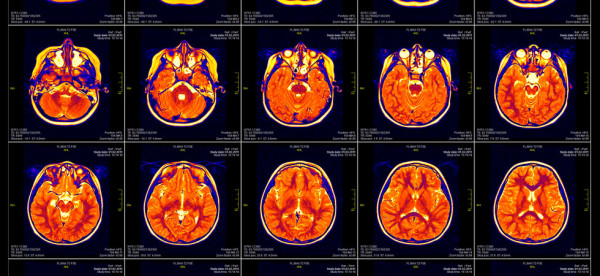 Real brain MRI slide of a girl