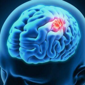Καρκίνος του εγκεφάλου